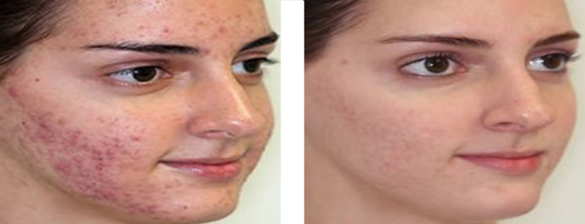 anti acne treatment in patna
